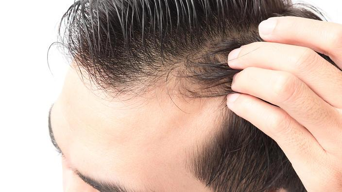 Coming to terms with your receding hairline | Guide