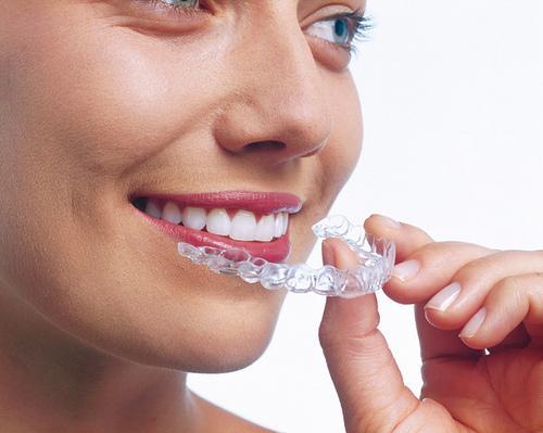 Ortodoncia de adultos