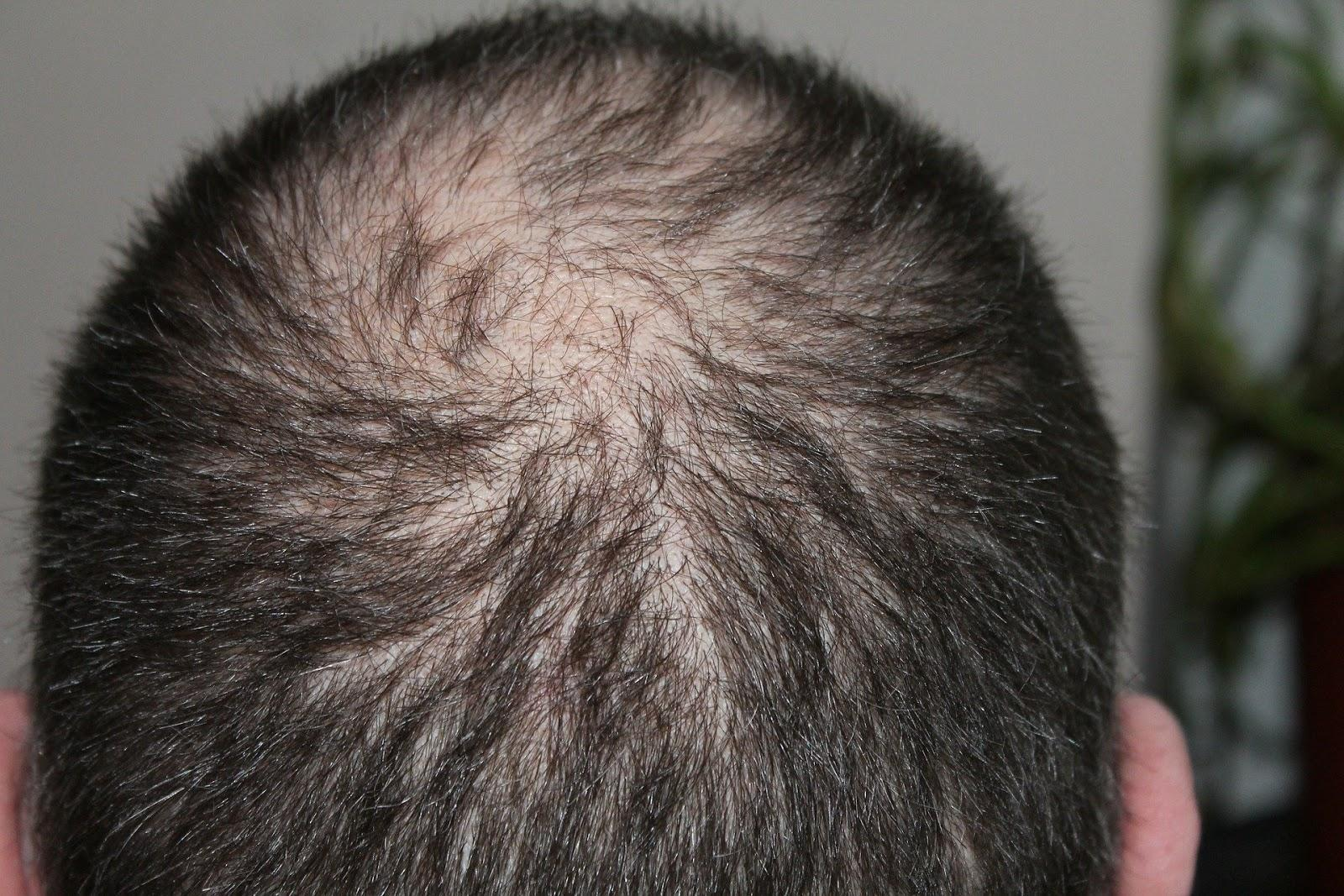 Hair Loss Management Tips From the Experts 2
