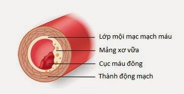 Động mạch vành bị tắc hẹp bởi mảng xơ vữa và cục máu đông