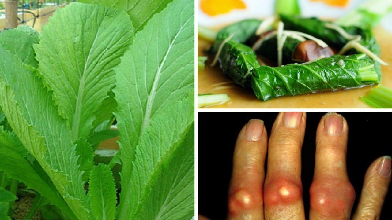 Bật mí mẹo dùng cải bẹ xanh trị bệnh gút đơn giản tại nhà  - Ảnh 1