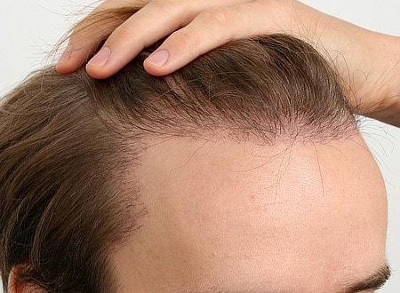saç ekimi nasıl uygulanır?