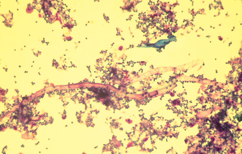 Hyphal elements and spores of Aspergillus fumigatus in Gram's-stained clinical specimen collected at endoscopy