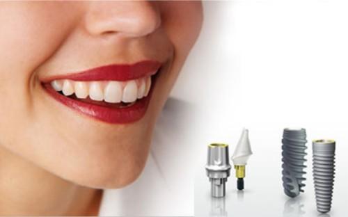 Giá trồng răng sứ vĩnh viễn bao nhiêu tiết kiệm nhất tháng 7? 1