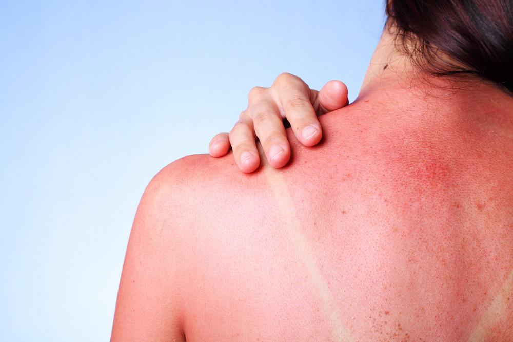 Image result for treating sunburns.