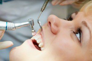 Nên cạo vôi răng bao lâu một lần bạn đã biết chưa?