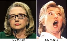 Billedresultat for hillary botox pictures