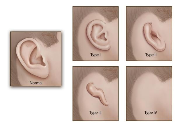 Microtia   Otolaryngology — Head & Neck Surgery (OHNS)   Stanford Medicine