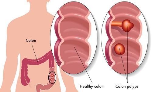 Polyp đại tràng là bệnh gì, có biến chứng thành ung thư không?