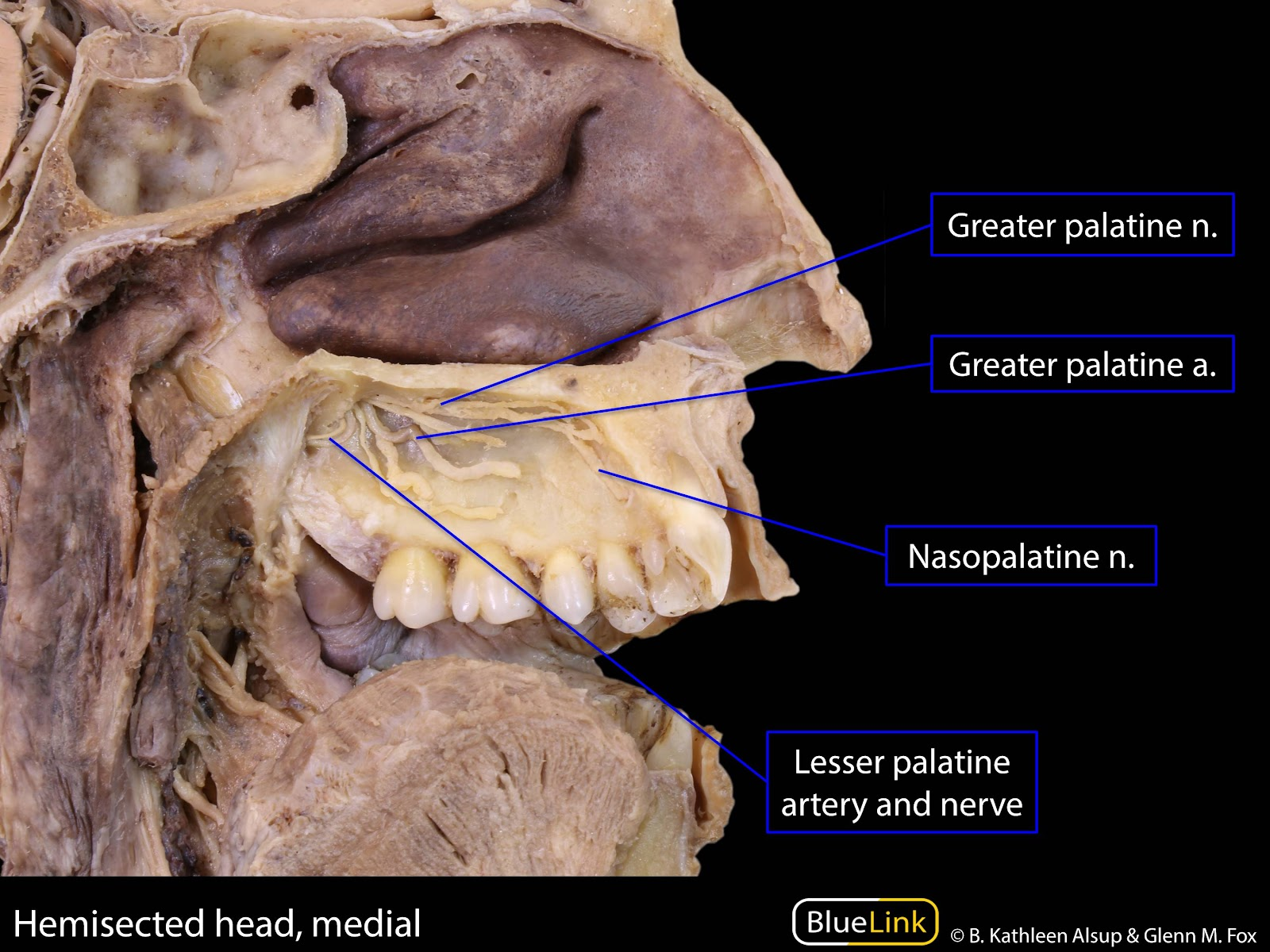 S12 Pterygopalatine Fossa and Palate - Learning Objectives - BlueLink