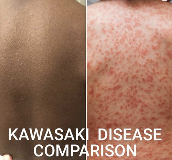 The picture demonstrates how differently the same disease can present on dark versus light skin.