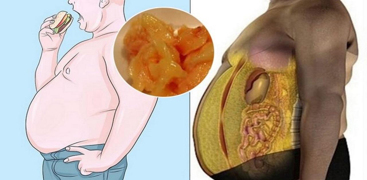 Mỡ bụng dưới ảnh hưởng như thế nào đến sức khỏe