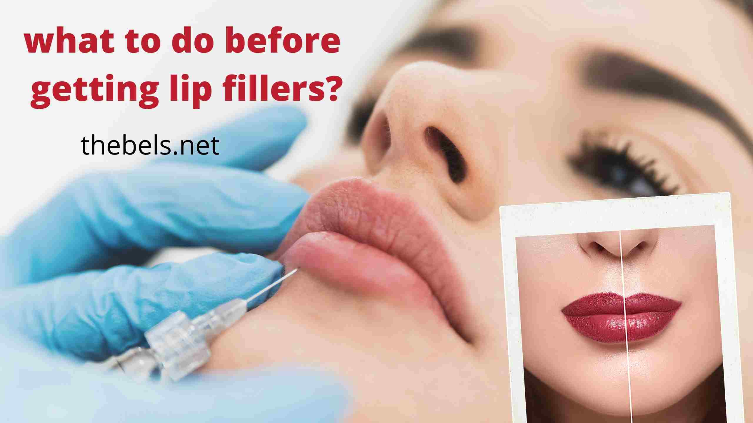 Things to know before getting lip fillers?