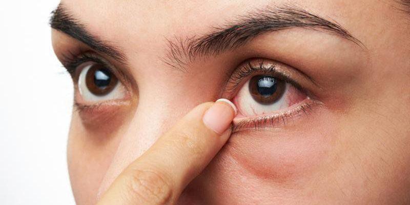 Bệnh đau mắt hột có triệu chứng gì?