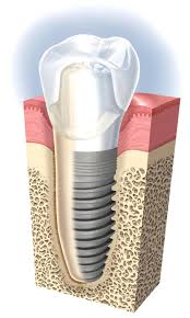 Photo of Dental Implant | Dental Implants Aurora IL