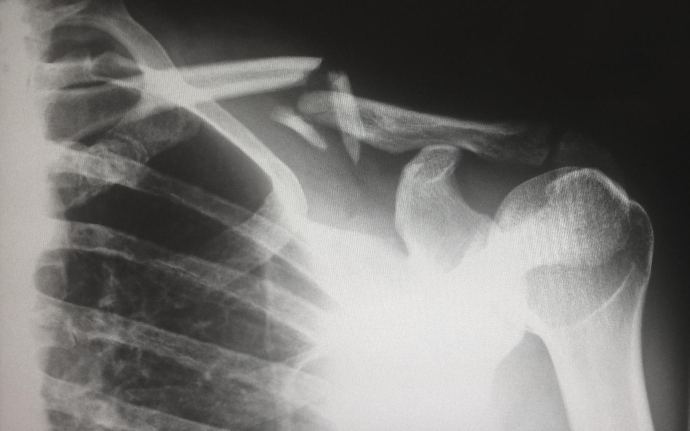 A picture containing X-ray film, blur  Description automatically generated