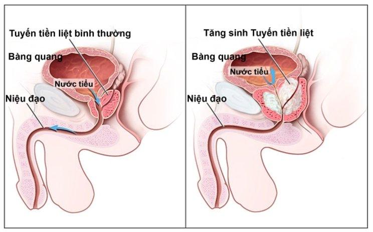 hai-long-giai-phap-dieu-tri-u-xo-phi-dai-tien-liet-tuyen-01