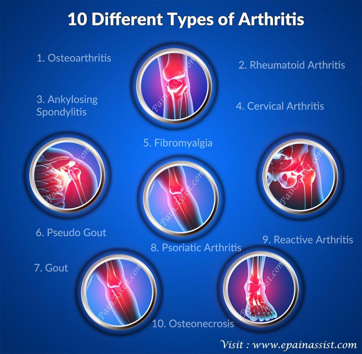 Image result for types of arthritis