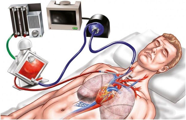 Ilustração do aparelho de ECMO em uso no paciente. (Fonte: Saúde MS/Reprodução)