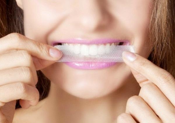 Lợi ích trường mắt của miếng dán tẩy trắng răng