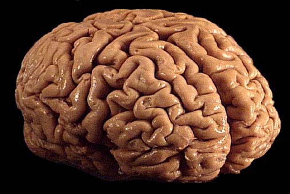 File:Brain 01.jpg - Wikimedia Commons
