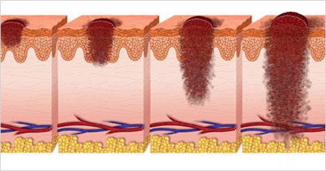 Skin Cancer Types, Stages & Different Levels