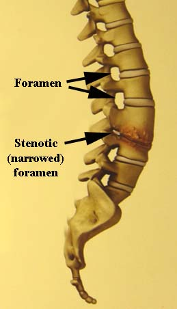 foraminal stenosis schematic w text