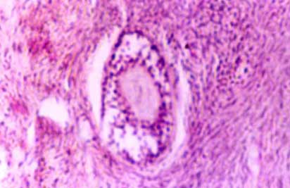 Microphotograph of an ovary showing an anovular cord. Note the arrangement of granulosa-like cells and the homogeneous material in the center. H&E 200X.