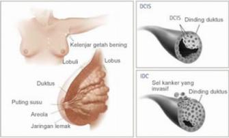 Suplemen Herbal Penderita Kanker Payudara