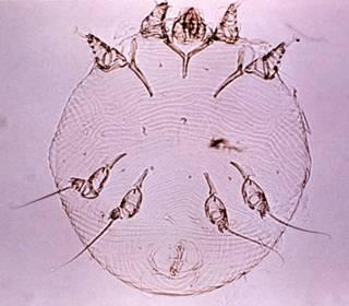 http://drkaae.com/InsectCivilization/assets/Chapter_5_Tick_and_Mites_files/image005.jpg