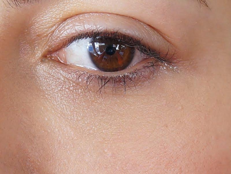 göz altı ışık dolgusu