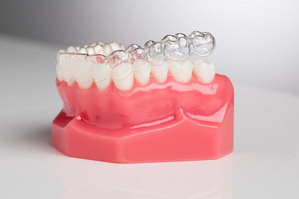 So sánh ưu nhược điểm của các phương pháp niềng răng mắc cài 1