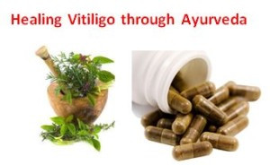 vitiligo-cure-through-ayurveda-300x184.jpg