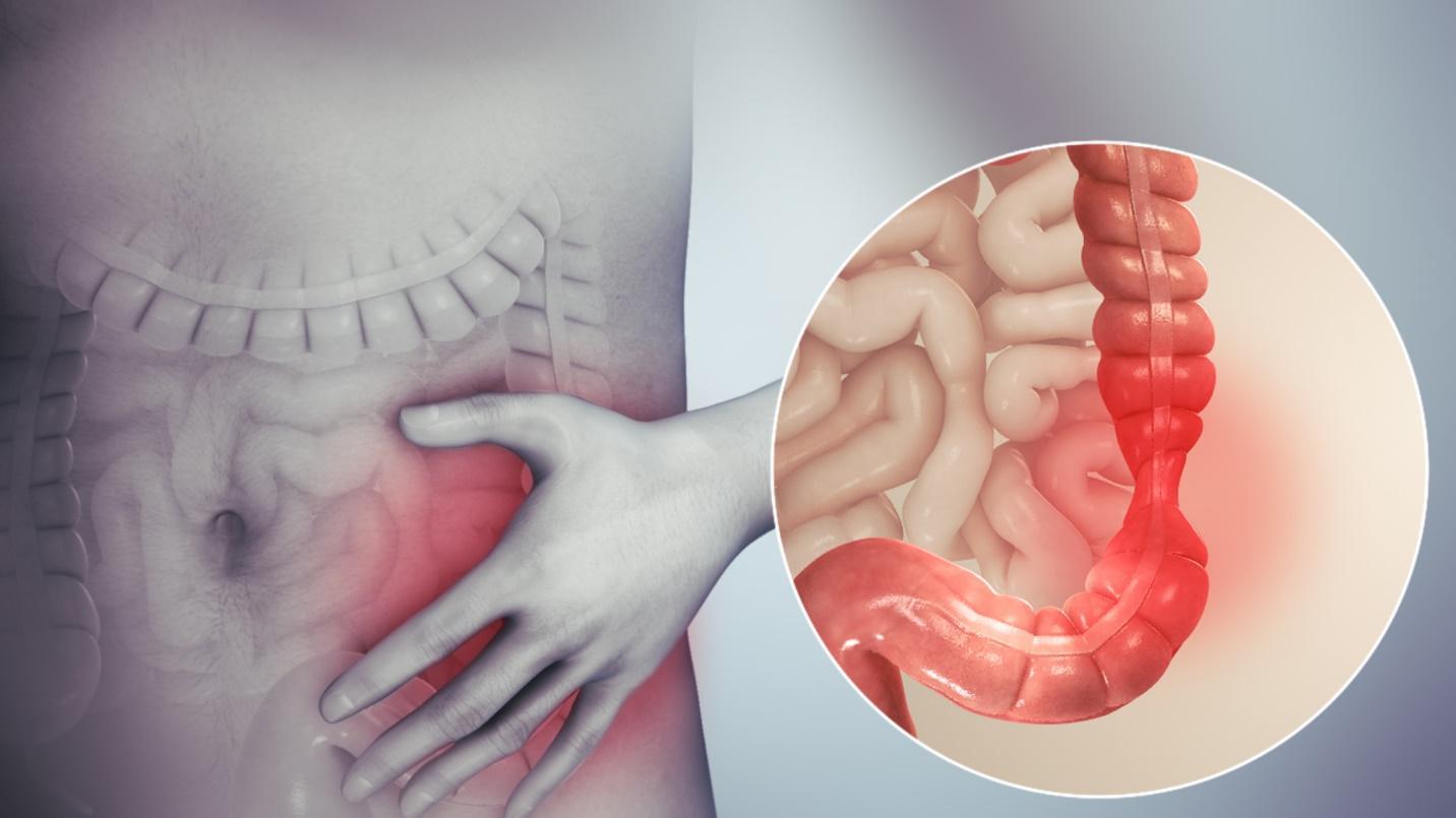 Hội chứng ruột kích thích – Wikipedia tiếng Việt