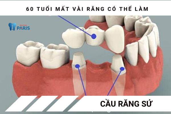 60 tuổi mất răng nên bắc cầu răng hay làm Implant? - Ảnh 1