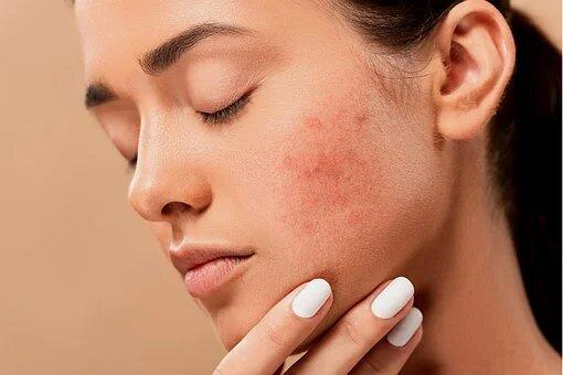 woman experiencing acne and red patches on her skin