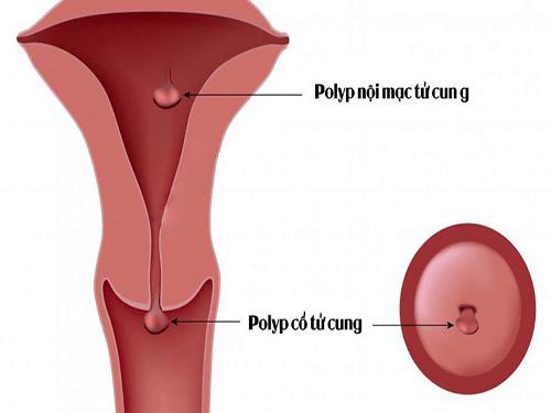 Mẹ bầu bị Polyp tử cung khi mang thai phải làm sao? - Ảnh 2