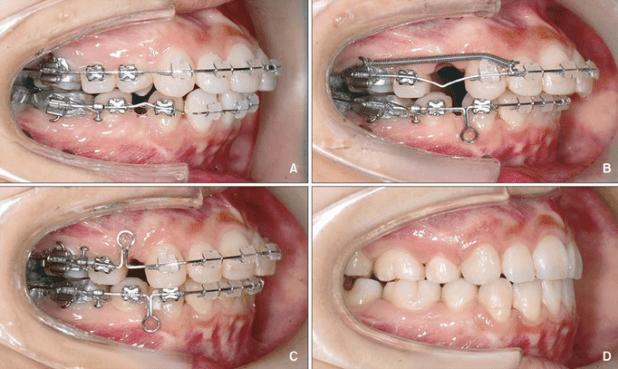 Tiết kiệm nửa thời gian điều trị với niềng răng gián tiếp 1