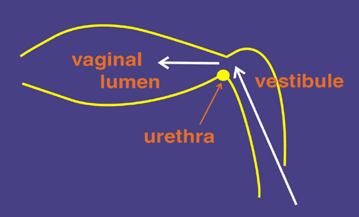 "Diagram emphasizing the fact that the endoscope is introduced through the dorsal commisure of the vulva at an angle that takes into account the angle of the vestibule and location of the urethral orifice. The index finger should be placed behind the endoscope and used to help ""lift"" the scope clear of the urethral orifice as the scope is moved to the horizontal plane."