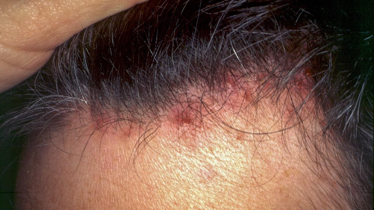 C:\Users\SUPRIYA\Downloads\Severe_scalp_folliculitis-1296x728-gallery_slide1-min (2).jpg