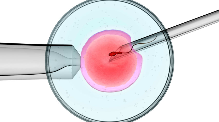 Contact Ziva Fertility to know intracytoplasmic sperm injection success rate in Hyderabad, best male infertility doctor near Kompally
