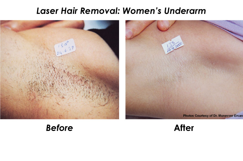 Hair Laser Removal – applecool.info