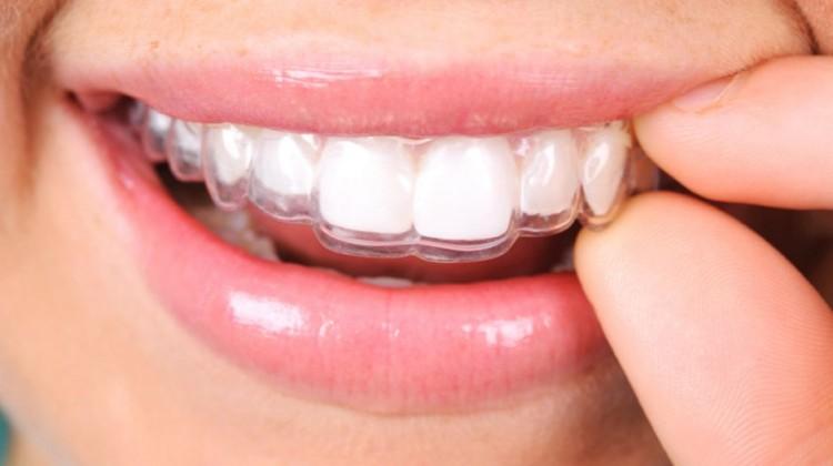 Niềng răng Invisalign có tốt không do đâu?