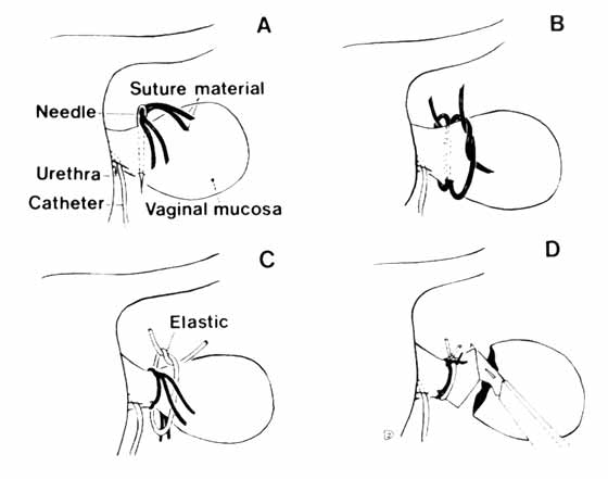 Amputation of a pear-shaped vaginal fold prolapse. A: Needle and two suture strands are transversed through the base of the edematous mucosa, B: Individual sutures are tied, C: Elastic band placed in groove, pulled tight and secured with a suture, D: Redundant vaginal mucosa is amputated [From 8].