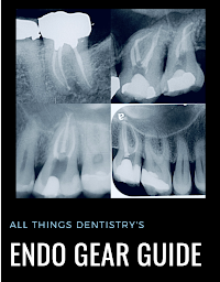 Gear Guide to make endo fun again!!