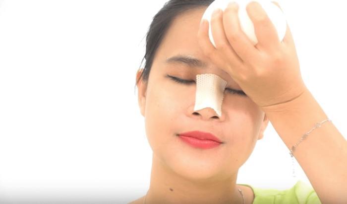 Phẫu thuật nâng mũi có an toàn không và cần lưu ý những gì? - Ảnh 3
