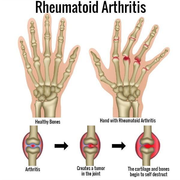 sakit sendi rheumatoid arthritis