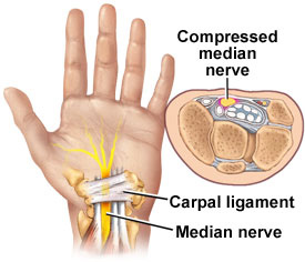 Carpal tunnel surgery releases pressure on median nerve.