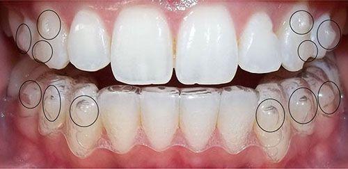 Ưu nhược điểm của các phương pháp niềng răng mắc cài thẩm mỹ  1