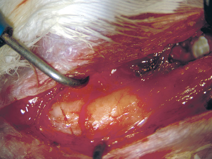 Dissection of the follicular tissue